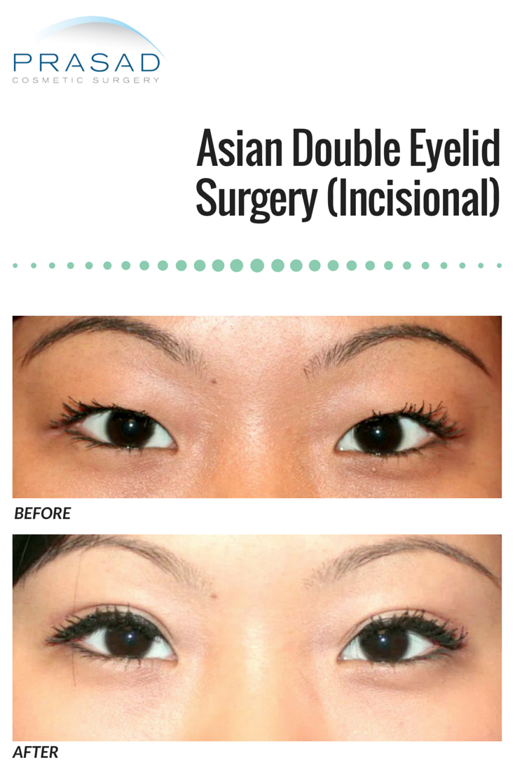 lid forum double eye Asian surgery