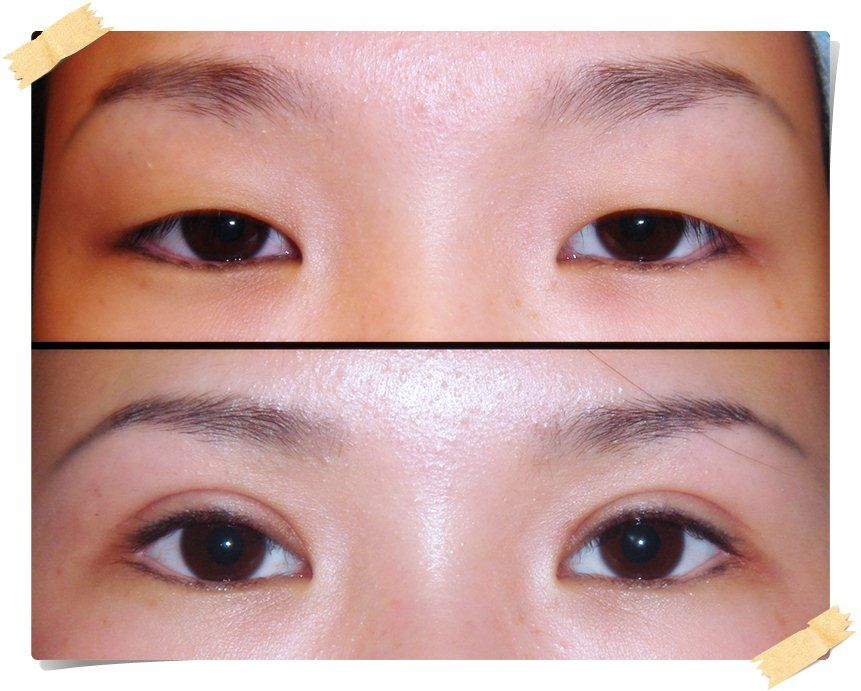 Asian double eye lid surgery forum